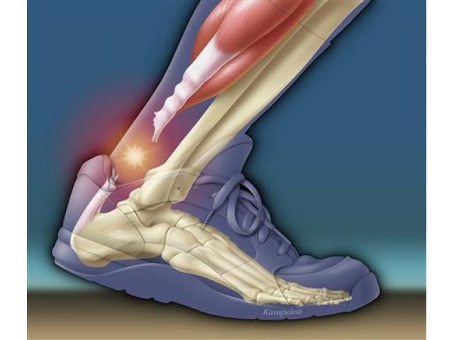 Excellent Achilles Tear Surgery- excellent results!