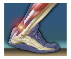 Excellent Achilles Tear Surgery- excellent results!
